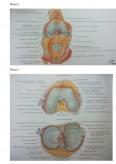 Imagine document Ingrijirea bolnavului cu gonartroza